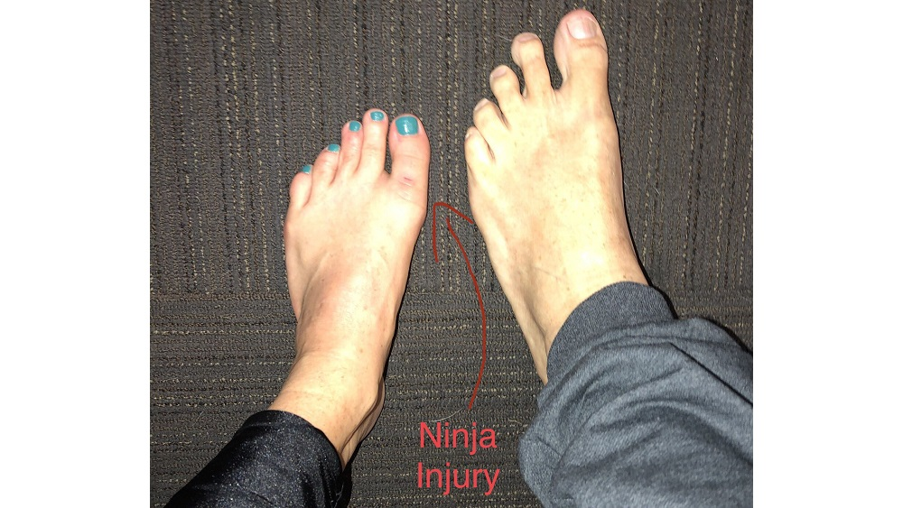 side by side comparison of deb and jason's feet