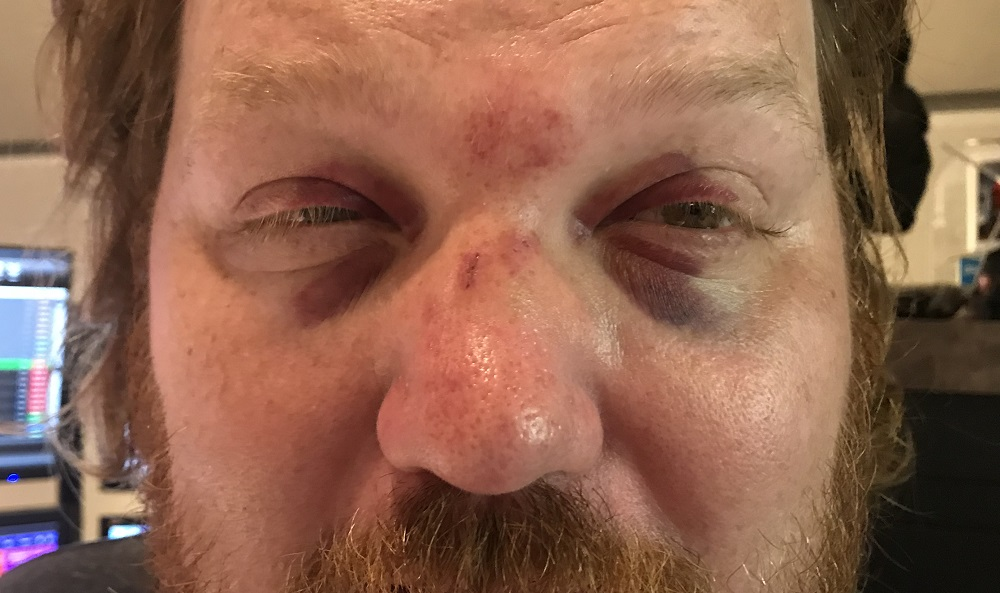 jason with two black eyes after taking a softball to the face
