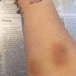 deb-addon-bruises