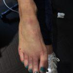 deb-foot-injury-bruise