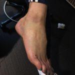 deb-foot-injury-bruise-2