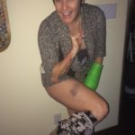 deb-leg-bruise