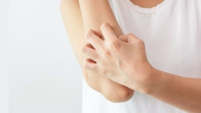 stock photo of someone scratching their arm