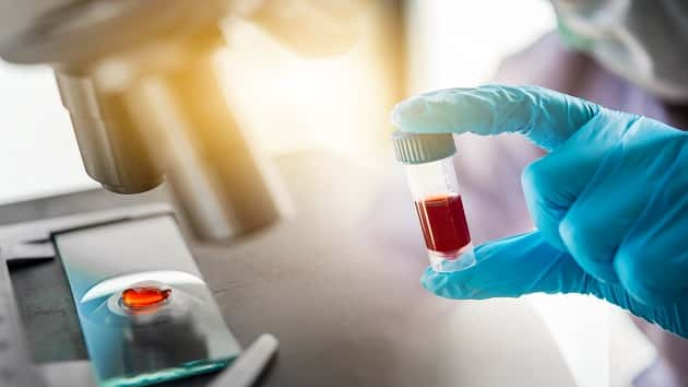 Kaiser Permanente Eager To Finish Coronavirus Testing Lab Ksro