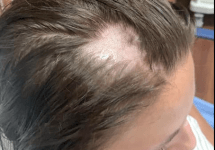 woman loses hair using tainted conditioner