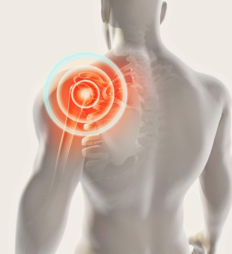 Biceps Tendon Rupture | Manhattan Sports Medicine and